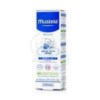MUSTELA - Cradle Cap Cream - 40ml